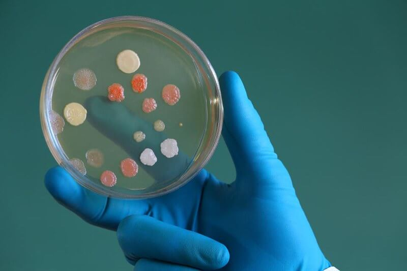 Antibiotic samples in a laboratory saucer