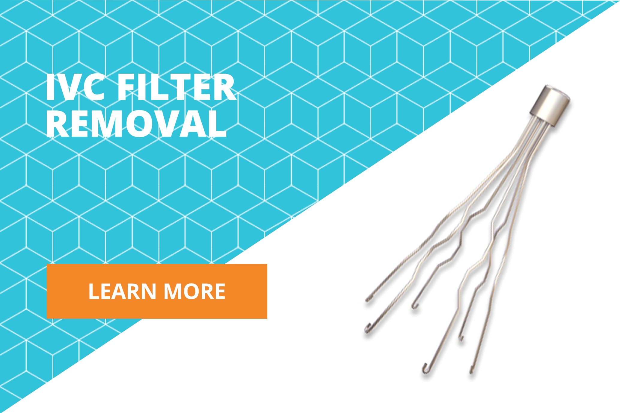 learn more about IVC filter removal surgery
