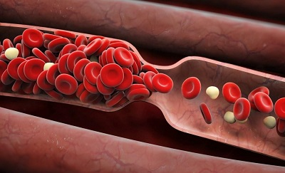 blood clot illustration xarelto