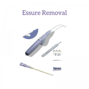 essure coils can be removed