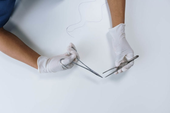 Person with gloves holding a pair of scissors