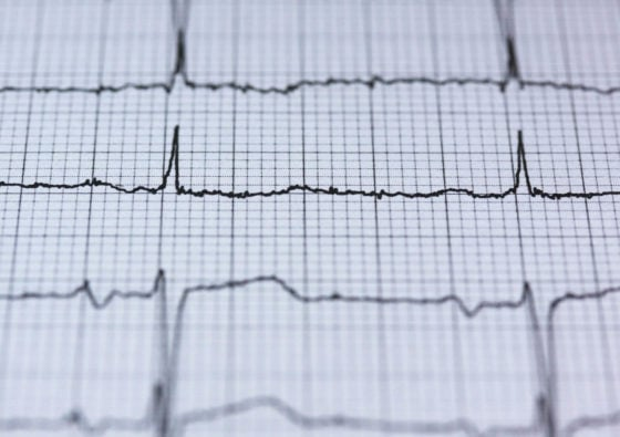 Record of vital signs on a paper